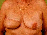 Der Plaststoff der Brüste jekaterinburg