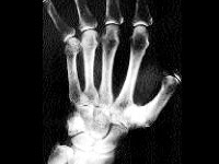 Arthrose Wirbelsäule Arbeitsunfähig